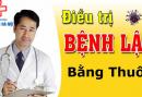 dieu-tri-lau-bang-thuoc-uong-duoc-khong