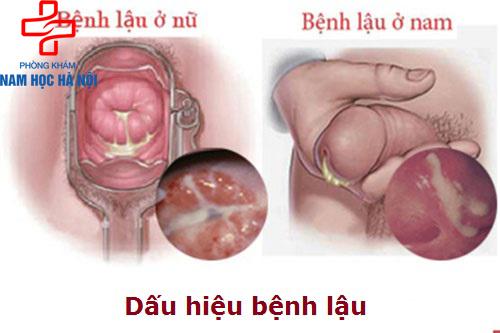 bieu-hien-benh-lau
