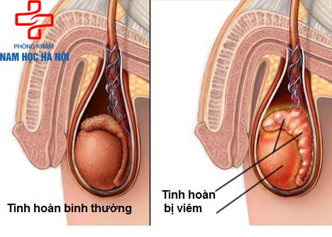 dau-hieu-viem-tinh-hoan-o-nam-gioi-thuong-gap