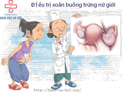 dieu-tri-xoan-buong-trung-nu-gioi