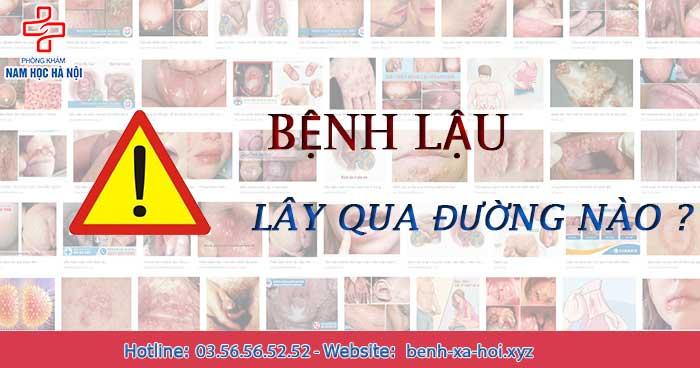 benh-lau-lay-qua-duong-nao