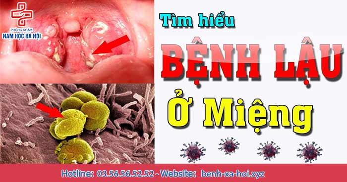 Giải đáp mọi thắc mắc về bệnh lậu ở miệng